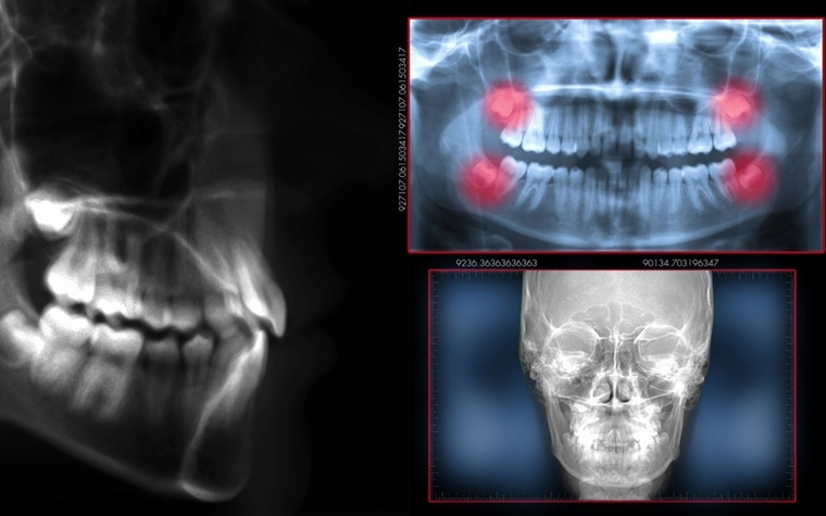 ADA calls for review of X-ray quality assurance standards