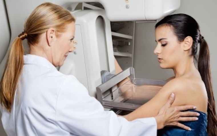 A recent study analyzed mammography's potential for over-diagnosis.