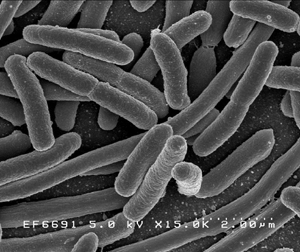 E. Coli bacteria under an electromagnetic microscope.