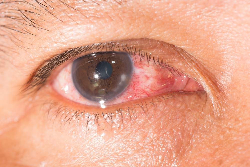 Acanthamoeba Keratitis is more likely to affect people who wear contact lenses.