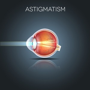 More than half of cataract surgery patients undergo the procedure because of corneal astigmatism.