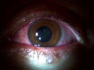 A patient that had contracted the Ebola virus in Liberia developed uveitis during convalescent stage.