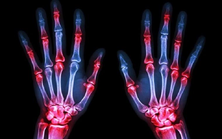 Study finds sarilumab superior to adalimubab for treating RA.