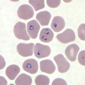 Rings of a malaria infected sample of blood
