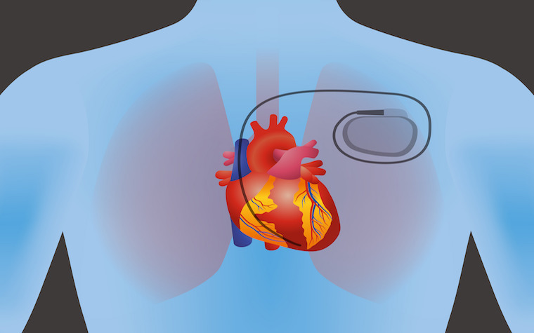 The FDA has OK'd the world's first pacemaker for heart rhythms that doesn't use wired leads.