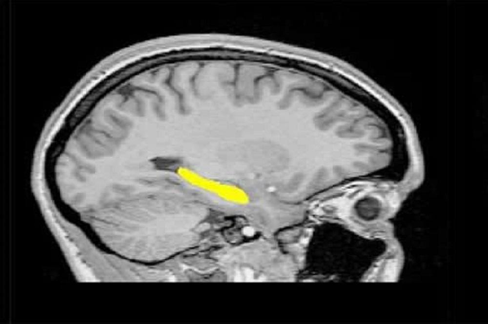 Schizophrenia is a critical, often disabling brain disorder.
