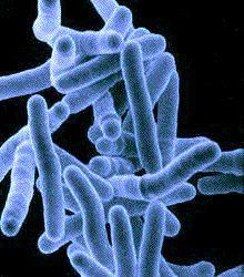 Human immune system's unique method of fighting TB