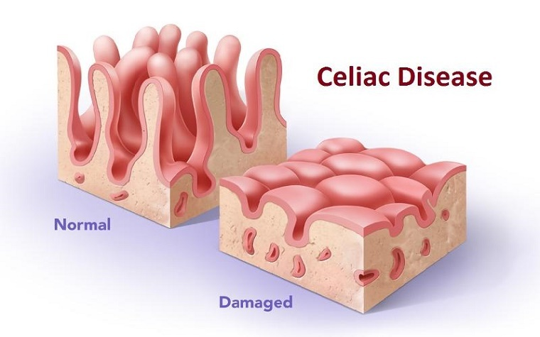 American, Japanese companies partner to research possible treatments for celiac disease.