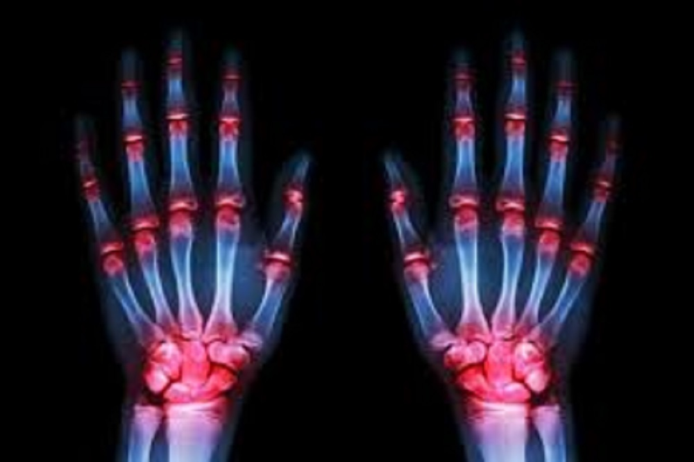 Approximately 1.5 million individuals in the U.S. suffer from rheumatoid arthritis.