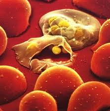 A new compound, (+)-SJ733, destroys malaria-infected cells without harming healthy ones using the body's own defenses.