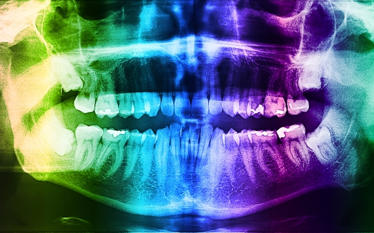 San Francisco workshop will train dentists in 3-D imaging technology