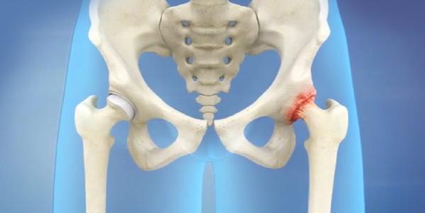 Large hip