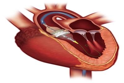 Edwards Lifesciences SAPIEN 3 valve - Anatomic illustration deployed