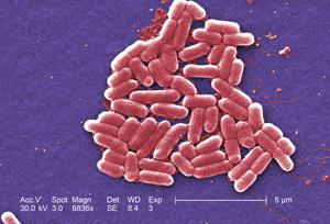 E. coli under 6,83x magnification.