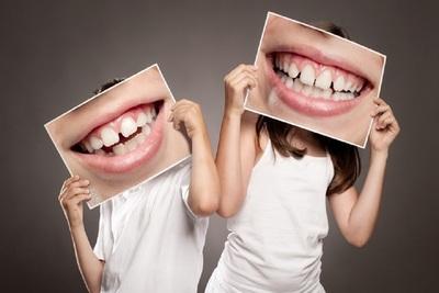 Medium smile