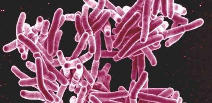 Genetic clues to TB immune response