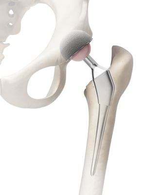 Hip replacement joint