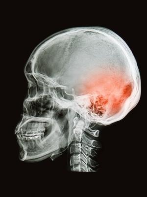 Large head trauma
