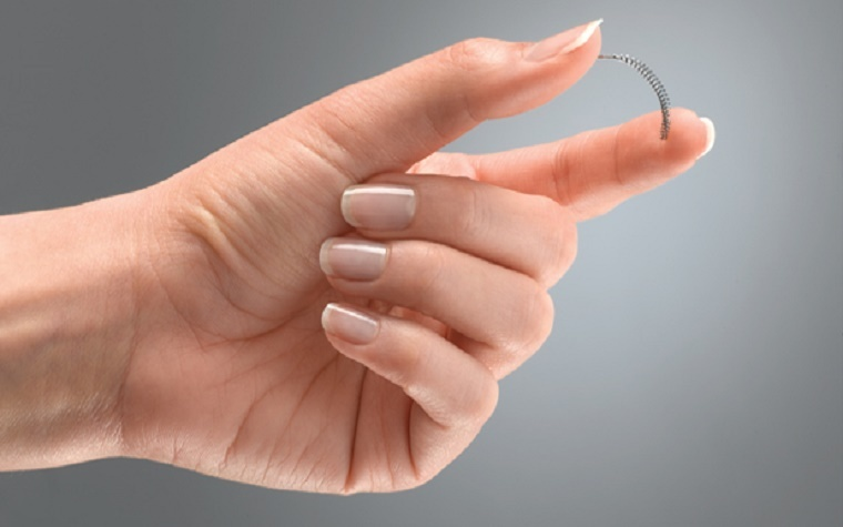 Federal judge: 24 Essure personal injury cases not headed back to