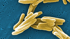 CDC introduces action plan to combat tuberculosis.