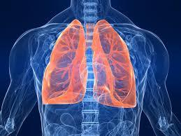 New study shows U.S. hospitalizations for adults with pneumonia.