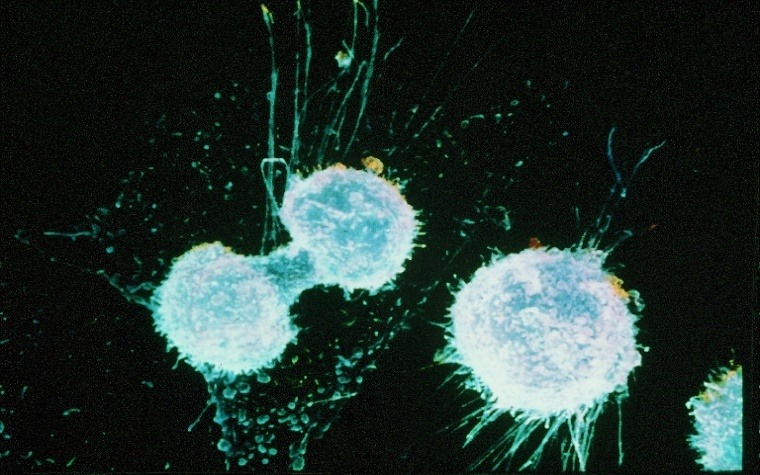 Pharmaceutical companies partner to research combination therapy for ovarian cancer.