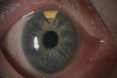 Medium eyes