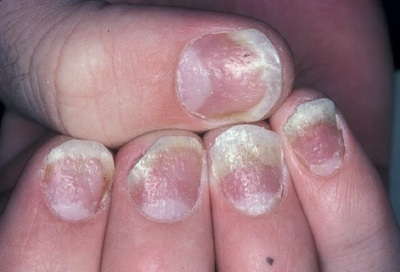 Fingernail psoriasis affects half of all psoriasis patients.