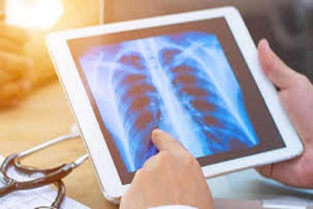 Lungcancer