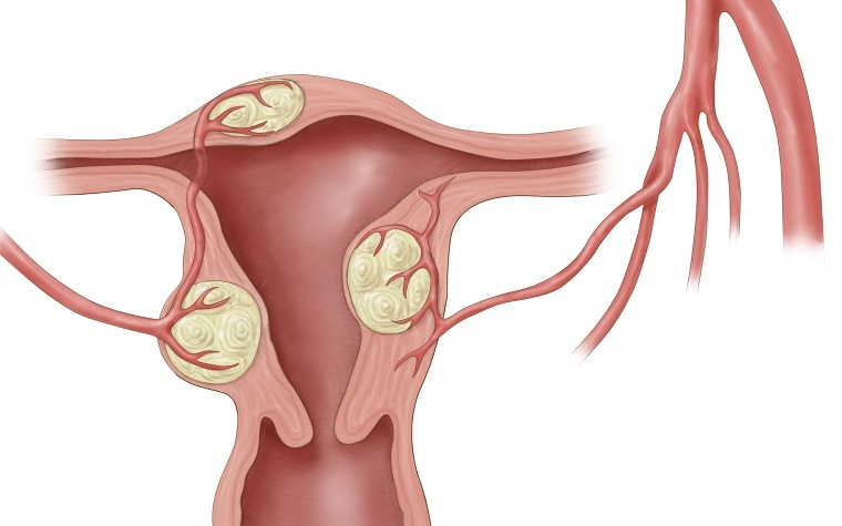 A new uterine fibroid therapy has entered into the third phase of clinical trials.