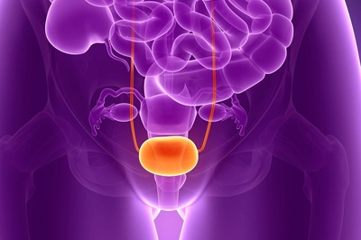 Urothelial cancer surfaces most often in the bladder.