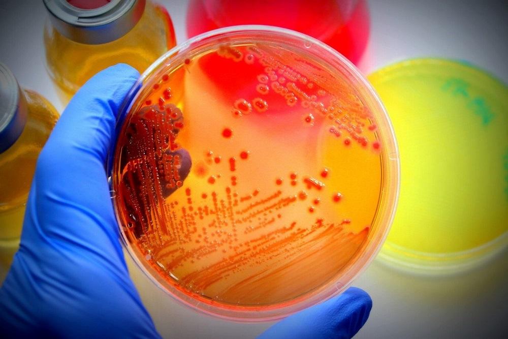 Pseudonomas baktérium elleni ujabb gyógyszert engedélyezhet az FDA