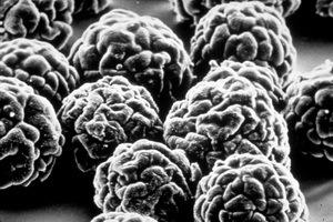 5th IHR Emergency Committee statement about wild poliovirus spreading internationally