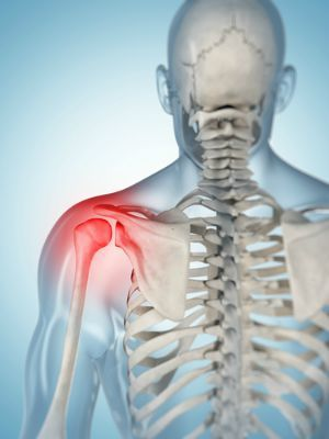 Patient sues after shoulder surgery allegedly results in carpal