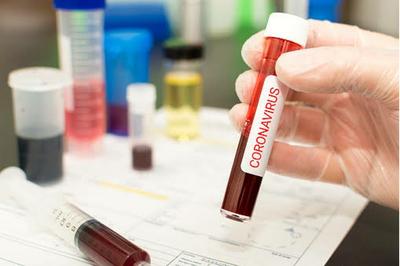 Medium coronavirus sample