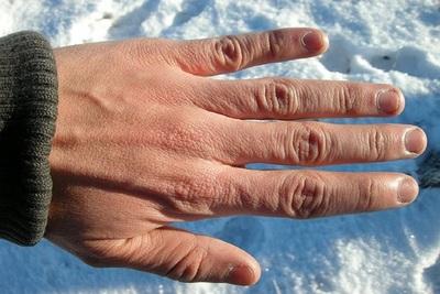 Medium frostbite