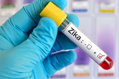 The test can distinguish Zika from other viruses such as dengue or chikungunya.