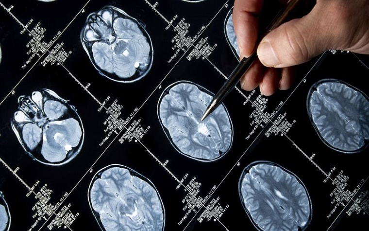 Researchers have discovered a link between hypertension and decreased cognitive function.