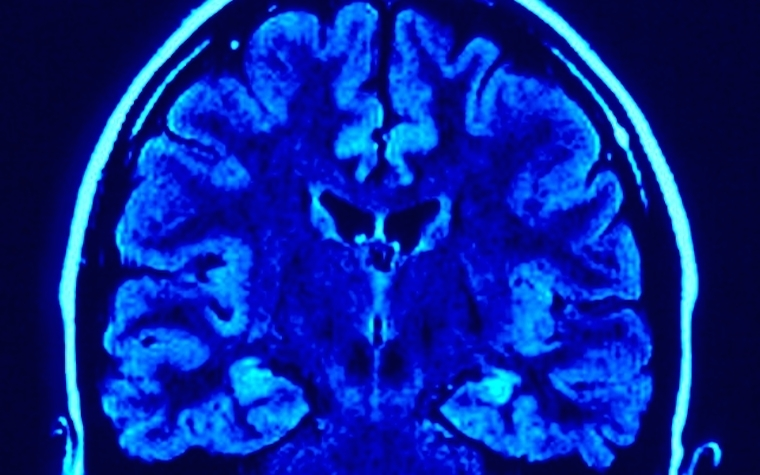 CTE is associated with abnormal aggregations of tau protein in the brain.