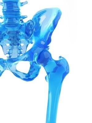 Large hip xray