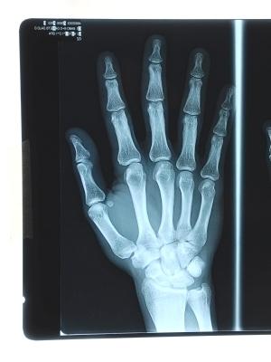 Computer Professional Sues Doctor Alleging Faulty Finger
