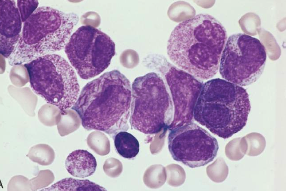 IDHIFA is a treatment for adult patients with relapsed or refractory acute myeloid leukemia (R/R AML) with an isocitrate dehydrogenase-2 (IDH2) mutation.
