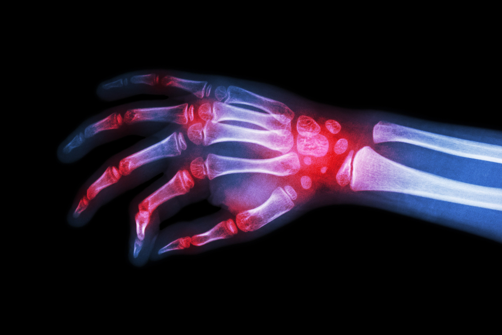 More than 2.9 million people are currently living with moderate to severe rheumatoid arthritis in Europe.