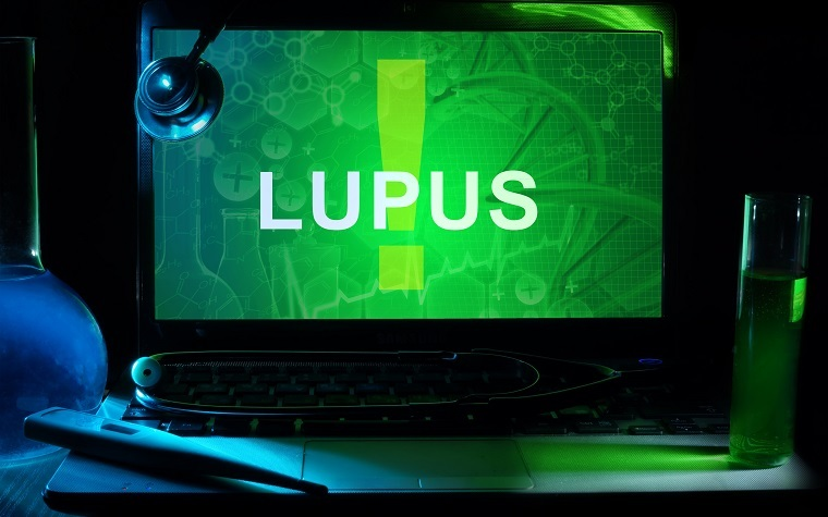 The Lupus Foundation has launched an initiative to improve clinical trials for lupus patients.