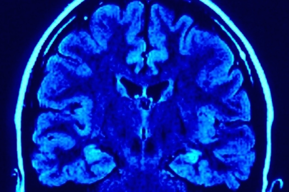 GBM is the most common and most lethal form of brain cancer.