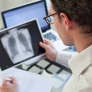 IBM and the University of Nottingham have joined forces on a tuberculosis study.