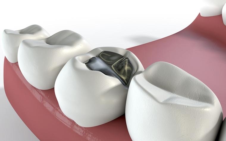ADA Foundation grants help educate about dental health