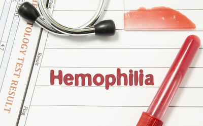 The SB-525 gene therapy program was created to help patients with hemophilia A.