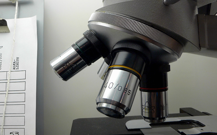 Gladstone Institutes recently formed a new ALS-focused collaborative with Biogen.